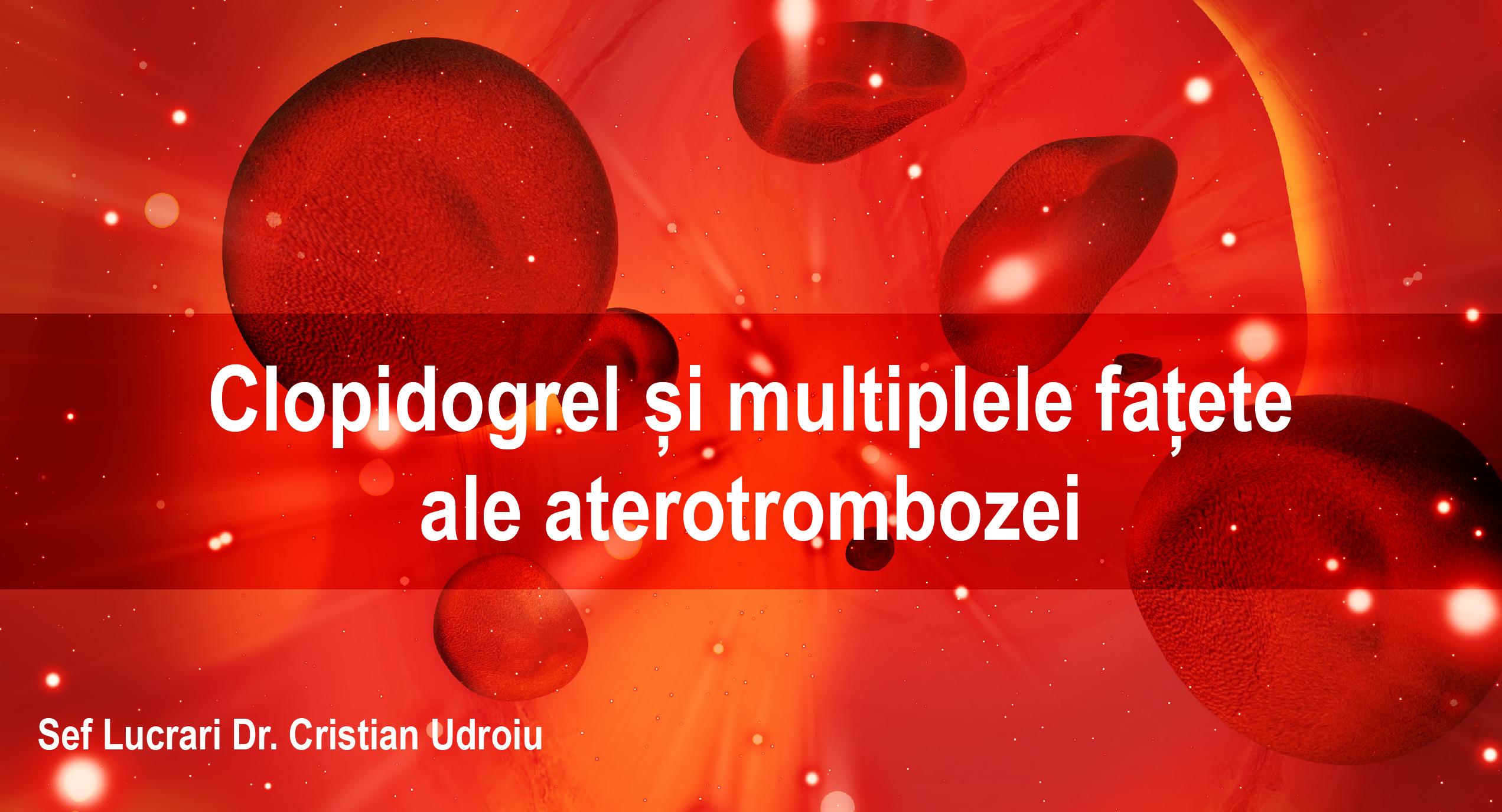 Clopidogrel și multiplele fațete ale aterotrombozei